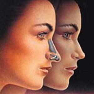 Пластическая хирургия носа стоимость фото