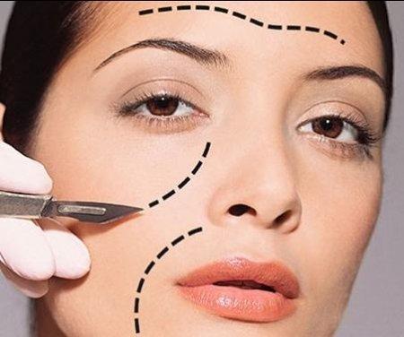 Пластическая хирургия лица фото
