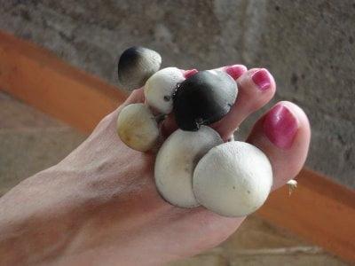 Неприятный запах ног причины грибок фото