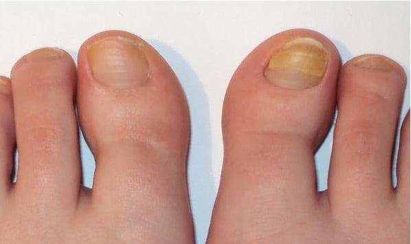 первый фото грибка ногтей на ногах аккорды песне: Мама