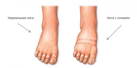 Отеки ног после кесарева сечения фото