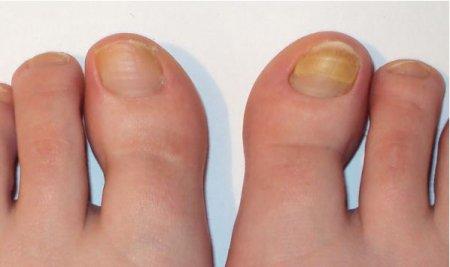 Грибок на ногах на ногтях