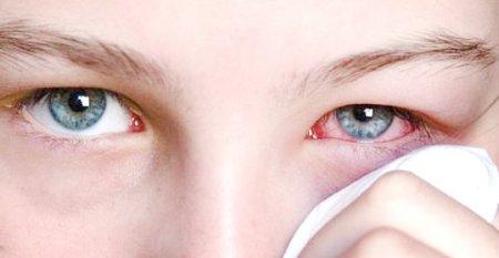 аллергический коньюктивит фото
