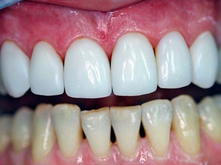 Как восстановить эмаль на зубах фото