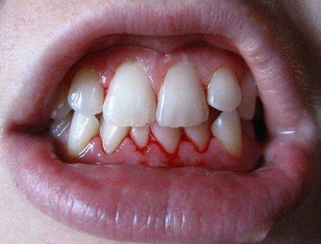 Гингивит – симптомы, фото