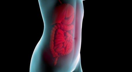 Перитонит – симптомы фото