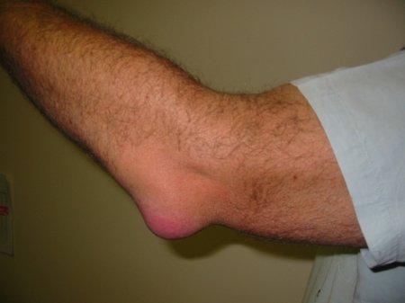 Бурсит локтевого сустава. Лечение заболевания основные особенности.