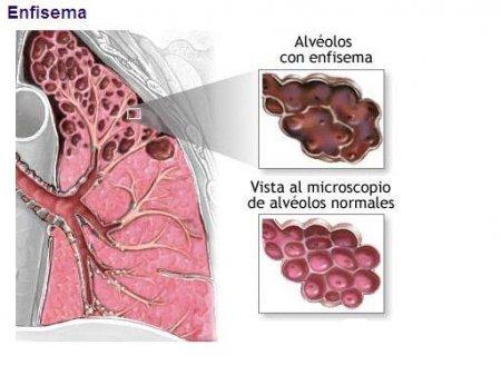 Анальная трещина  причины симптомы лечение