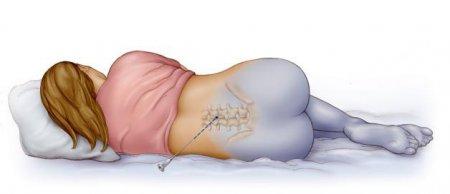 Эпидуральная анестезия при родах фото