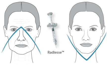 Радиесс – отзывы фото