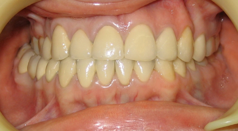 виниры на зубы цена в минске