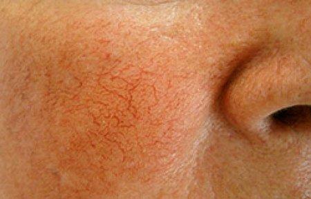 Купероз на лице – лечение, фото