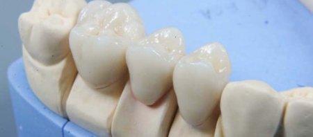 Металлокерамика зубы – цена фото