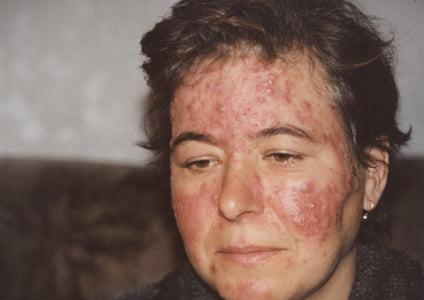 Клещ демодекс на лице – фото