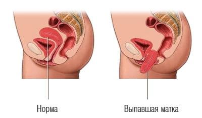 выпадение матки фото