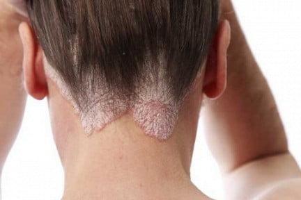 Себорея кожи головы – фото