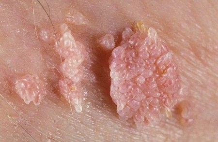 Вирус папилломы человека фото