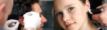 Противопоказания к прокалыванию хряща уха фото