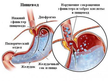 развития спазмов привратника желудка фото