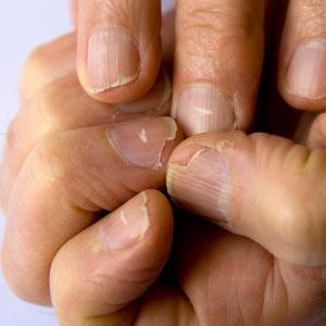 почему слоятся ногти на руках фото