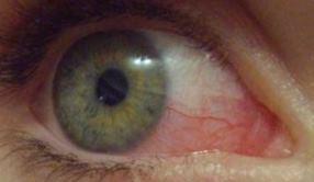 Как поступить, если лопнул капилляр в глазу фото