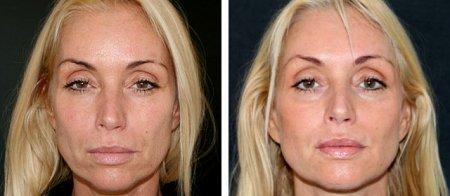 Radiesse – фото до и после