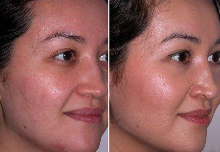 Микродермабразия – фото до и после