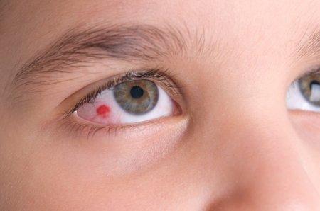 Что делать, если лопнул капилляр в глазу фото