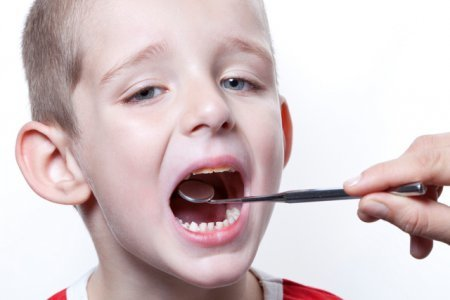 Аденоиды у детей фото