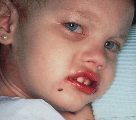 Болезнь Кавасаки у детей – фото