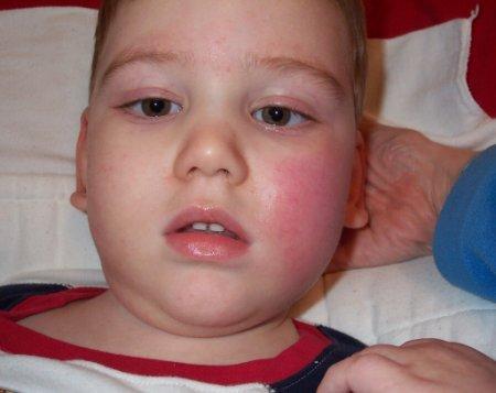 болезнь Кавасаки у детей  фото
