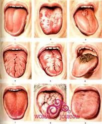 молочница полости рта