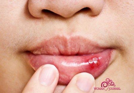 Кандидоз полости рта причины и симптомы