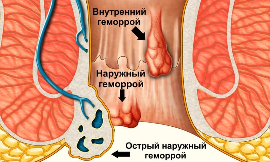 мазь Вишневского при наружном геморрое